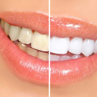 blanqueamiento dental - estética dental en Terrassa