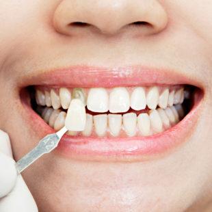 carillas dentales - estética dental en Terrassa