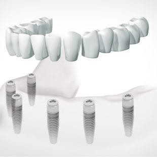 implantes dentales dentadura fija