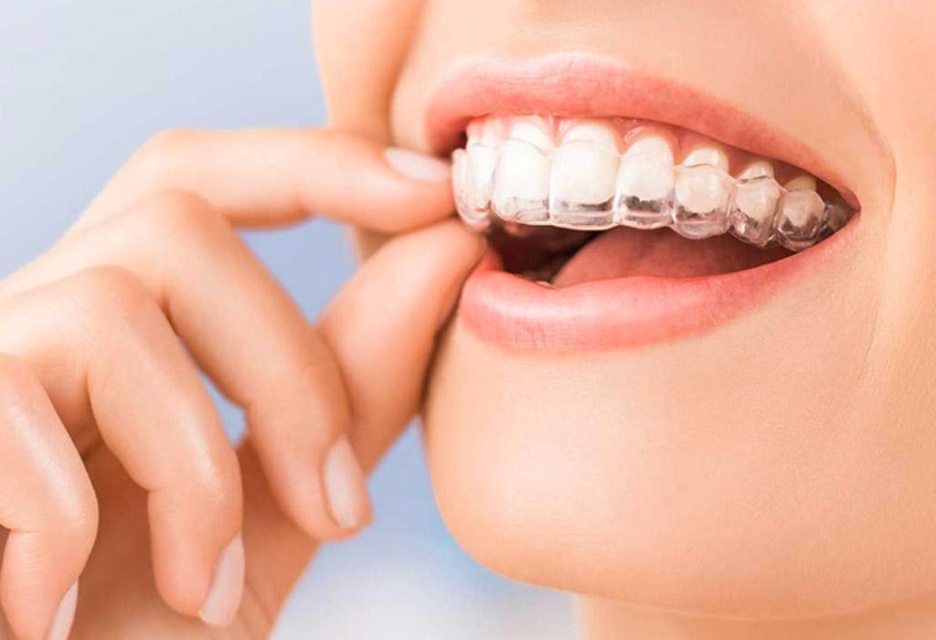 ortodoncia invisible en Terrassa
